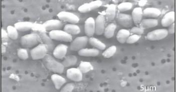 Bakterie GFAJ-1 / Credits - NASA, dr Wolfe-Simon