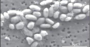 Zdjęcie przedstawiające kulturę bakterii GFAJ-1 na arsenowym podłożu u dr Wolfe-Simon. W tej chwili wiemy już, że wyniki analizy pani doktor są wątpliwe i bakterie wykorzystują do wzrostu fosfor, tak jak inne ziemskie organizmy. Obraz wykonano za pomocą elektronowego mikroskopu skaningowego. Credits: NASA