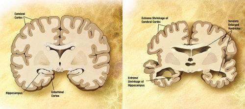 Ilustracja przedstawia uszkodzenia mózgu wywołane chorobą Alzheimera. (Credit: Wikipedia)