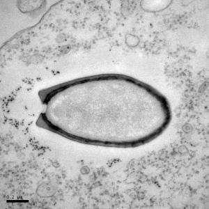 Zdjęcie przedstawia amebę zainfekowaną przez pandorawirusa. (Chantal Abergel/Jean-Michel Claverie)