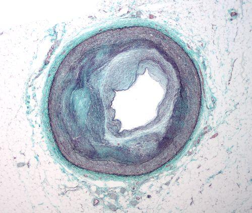 Zmiany miażdżycowe w tętnicy: wyraźnie widać nagromadzony materiał zmniejszający światło (przekrój użyteczny) tętnicy. Dalsze postępowanie choroby zamyka całkowicie drogę przepływu. (Źródło: Wikipedia)