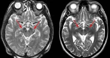 Po lewej: Obraz mózgowia pacjenta z chorobą Parkinsona. Strzałki wskazują na charakterystyczne dla schorzenia zwężenie istoty zbitej substancji czarnej. Po prawej: obraz mózgu zdrowego człowieka w tym samym wieku. Nanotechniki opracowane przez naukowców Centrum Amesa mogą pomóc w lepszym poznaniu mechanizmów tej choroby. Credits: University of Virginia